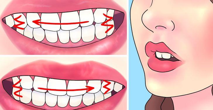 Làm sao cho hết nghiến răng?