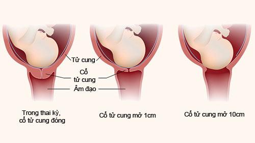 5 dau hieu chuyen da thong bao thoi gian sinh no cho me bau 3