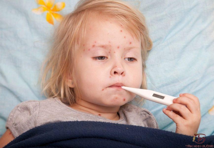cách điều trị bệnh thủy đậu ở trẻ em-1