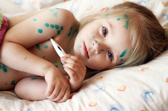 cách điều trị bệnh thủy đậu ở trẻ em-2